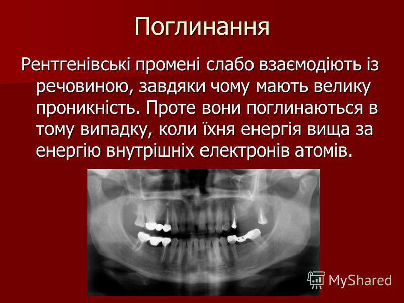 Поглинання Рентгенівські промені слабо взаємодіють із речовиною, завдяки чому мають велику проникність. Проте вони поглинаються в тому випадку, коли їхня енергія вища за енергію внутрішніх електронів атомів.