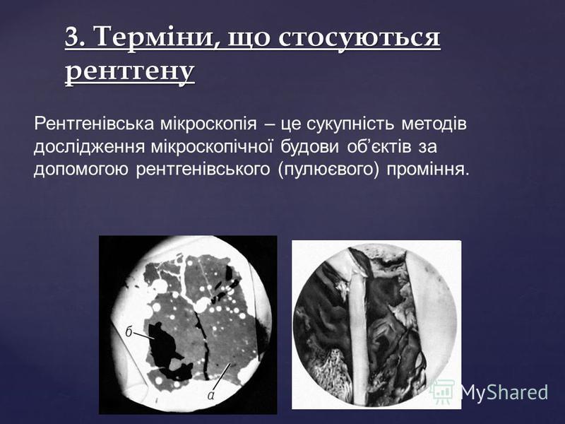 3. Терміни, що стосуються рентгену Рентгенівська мікроскопія – це сукупність методів дослідження мікроскопічної будови обєктів за допомогою рентгенівського (пулюєвого) проміння.