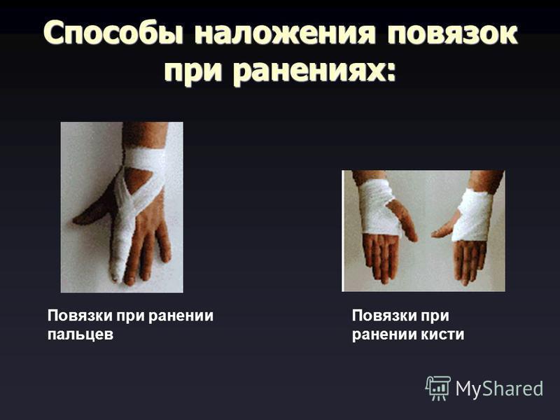 Способы наложения повязок при ранениях: Повязки при ранении пальцев Повязки при ранении кисти