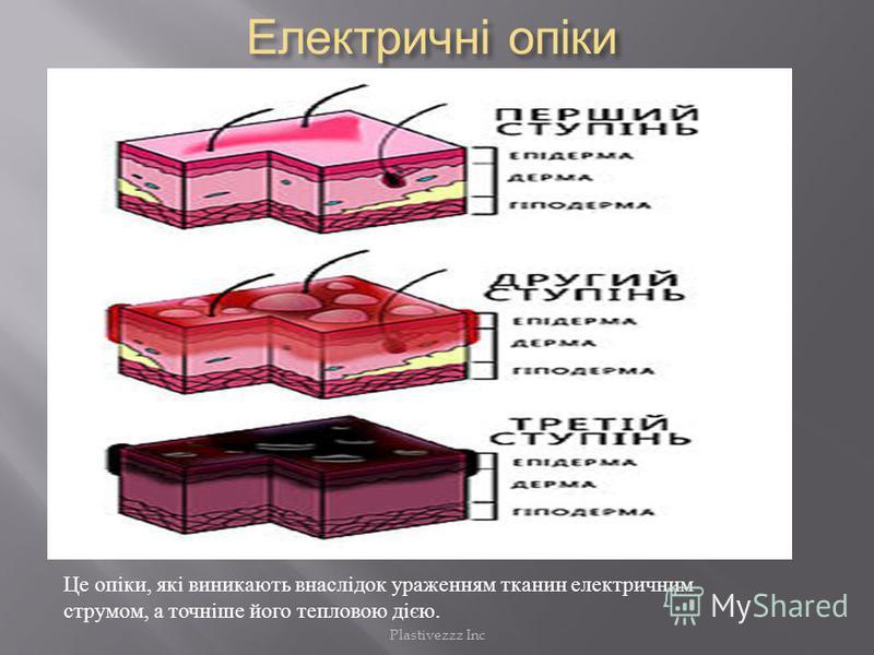 Електричні опіки Електричні опіки Це опіки, які виникають внаслідок ураженням тканин електричним струмом, а точніше його тепловою дією. Plastivezzz Inc