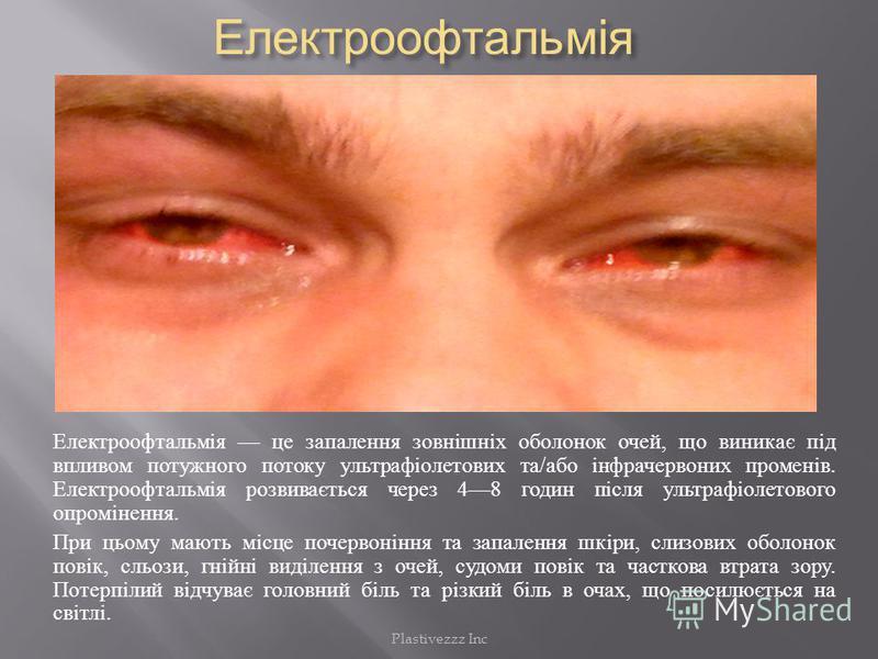 Електроофтальмія Електроофтальмія Електроофтальмія це запалення зовнішніх оболонок очей, що виникає під впливом потужного потоку ультрафіолетових та / або інфрачервоних променів. Електроофтальмія розвивається через 48 годин після ультрафіолетового оп