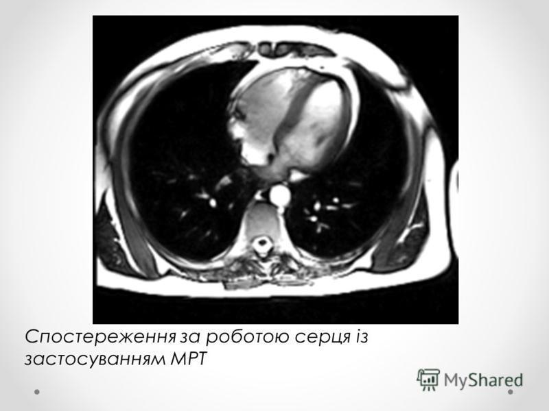 Спостереження за роботою серця із застосуванням МРТ