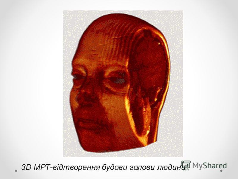 3D МРТ-відтворення будови голови людини