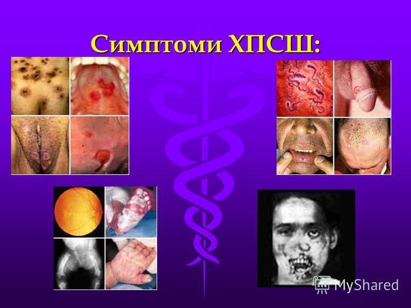 Симптоми ХПСШ: