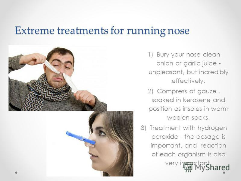 Extreme treatments for running nose 1)Bury your nose clean onion or garlic juice - unpleasant, but incredibly effectively. 2)Compress of gauze, soaked in kerosene and position as insoles in warm woolen socks. 3)Treatment with hydrogen peroxide - the