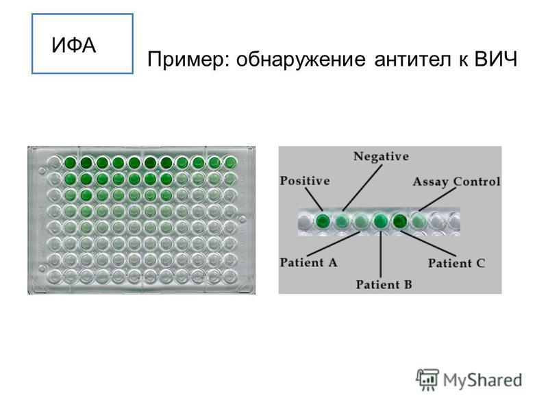 ИФА Пример: обнаружение антител к ВИЧ