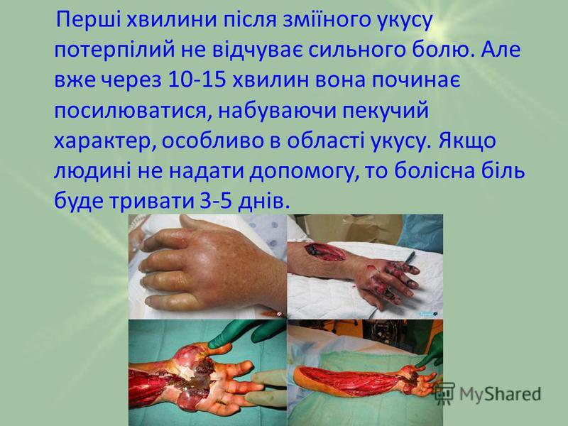 Перші хвилини після зміїного укусу потерпілий не відчуває сильного болю. Але вже через 10-15 хвилин вона починає посилюватися, набуваючи пекучий характер, особливо в області укусу. Якщо людині не надати допомогу, то болісна біль буде тривати 3-5 днів