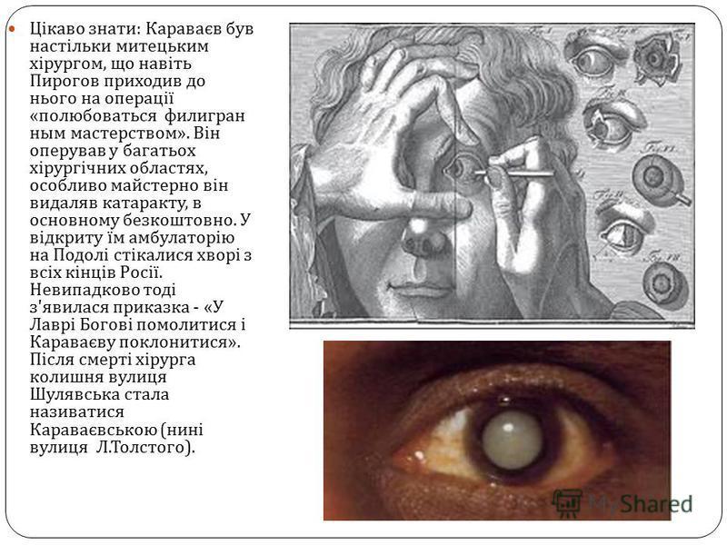 Цікаво знати : Караваєв був настільки митецьким хірургом, що навіть Пирогов приходив до нього на операції « полюбоваться филигран ным мастерством ». Він оперував у багатьох хірургічних областях, особливо майстерно він видаляв катаракту, в основному б