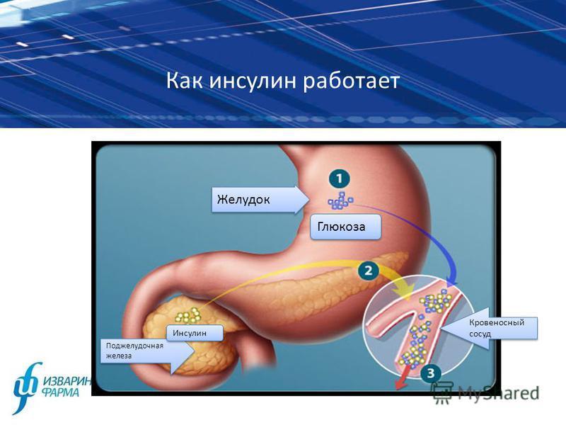 Как инсулин работает Желудок Глюкоза Поджелудочная железа Инсулин Кровеносный сосуд