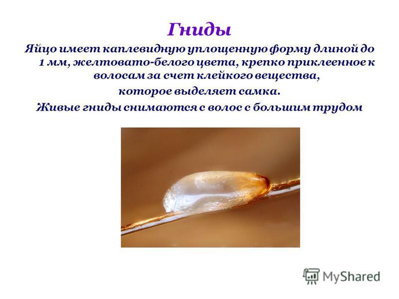 Гниды Яйцо имеет каплевидную уплощенную форму длиной до 1 мм, желтовато-белого цвета, крепко приклеенное к волосам за счет клейкого вещества, которое выделяет самка. Живые гниды снимаются с волос с большим трудом