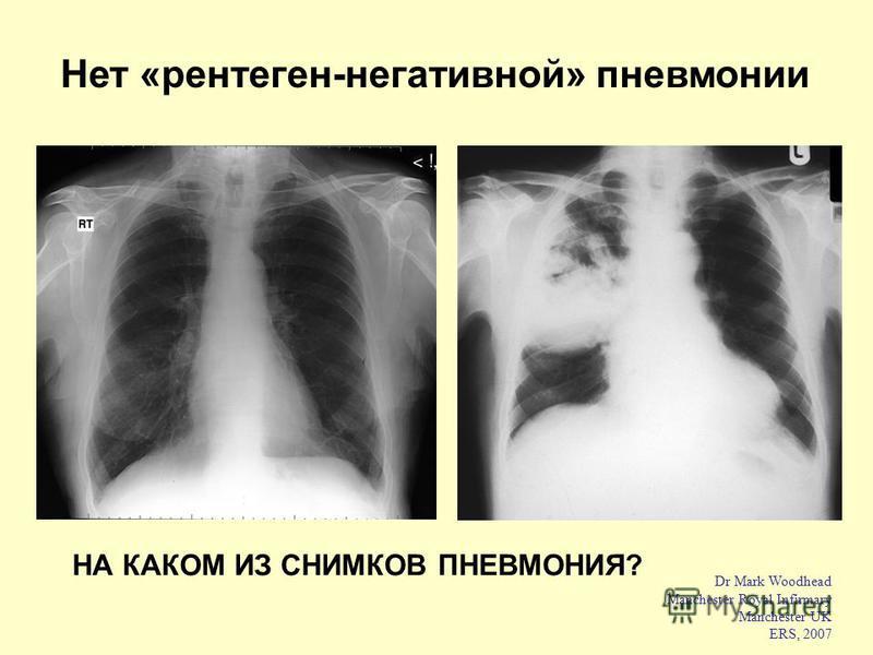 Dr Mark Woodhead Manchester Royal Infirmary Manchester UK ERS, 2007 Нет «рентген-негативной» пневмонии НА КАКОМ ИЗ СНИМКОВ ПНЕВМОНИЯ?