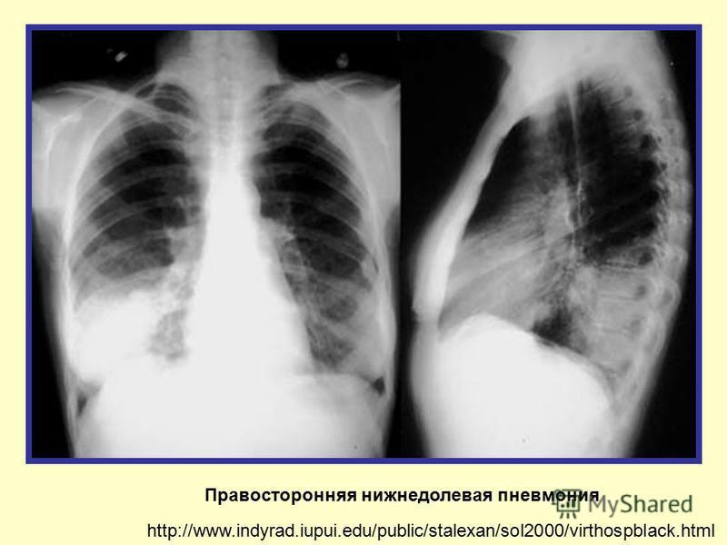 Правосторонняя нижнедолевая пневмония http://www.indyrad.iupui.edu/public/stalexan/sol2000/virthospblack.html