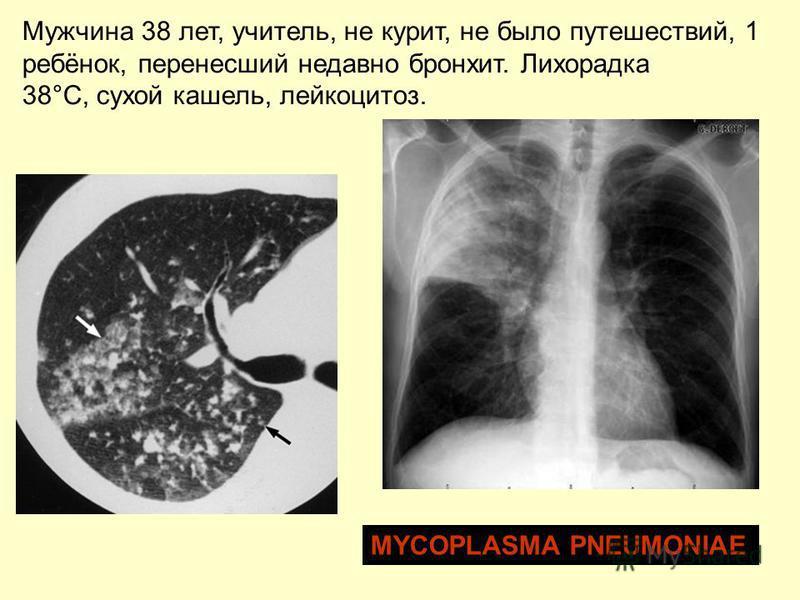 Мужчина 38 лет, учитель, не курит, не было путешествий, 1 ребёнок, перенесший недавно бронхит. Лихорадка 38°C, сухой кашель, лейкоцитоз. MYCOPLASMA PNEUMONIAE