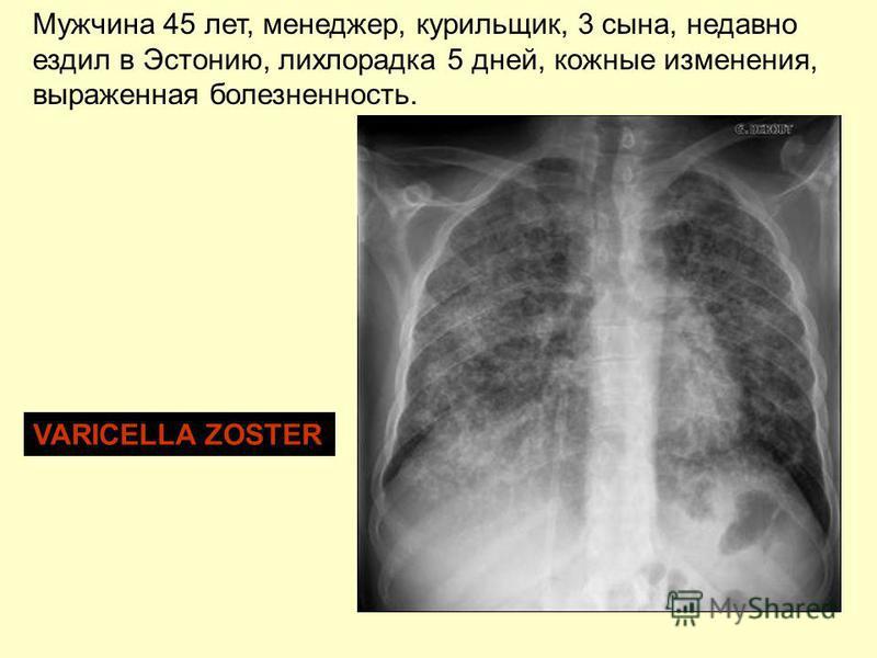 Мужчина 45 лет, менеджер, курильщик, 3 сына, недавно ездил в Эстонию, лихорадка 5 дней, кожные изменения, выраженная болезненность. VARICELLA ZOSTER