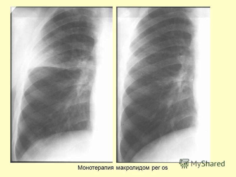 Монотерапия макролидом per os