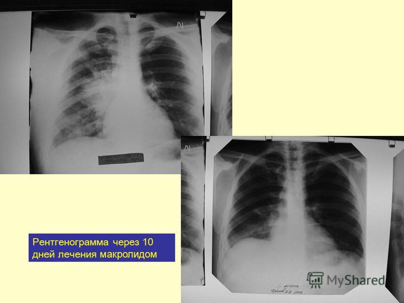 Рентгенограмма через 10 дней лечения макролидом
