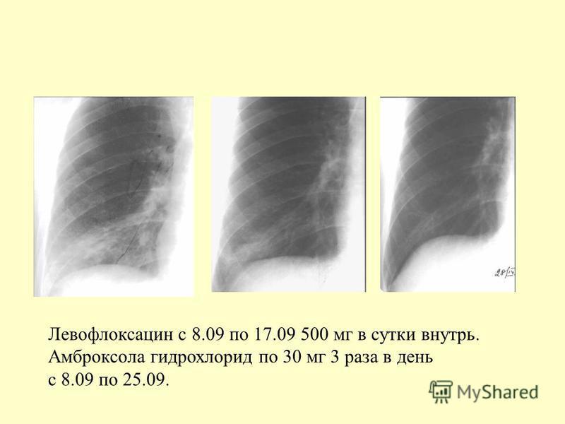 Левофлоксацин с 8.09 по 17.09 500 мг в сутки внутрь. Амброксола гидрохлорид по 30 мг 3 раза в день с 8.09 по 25.09.