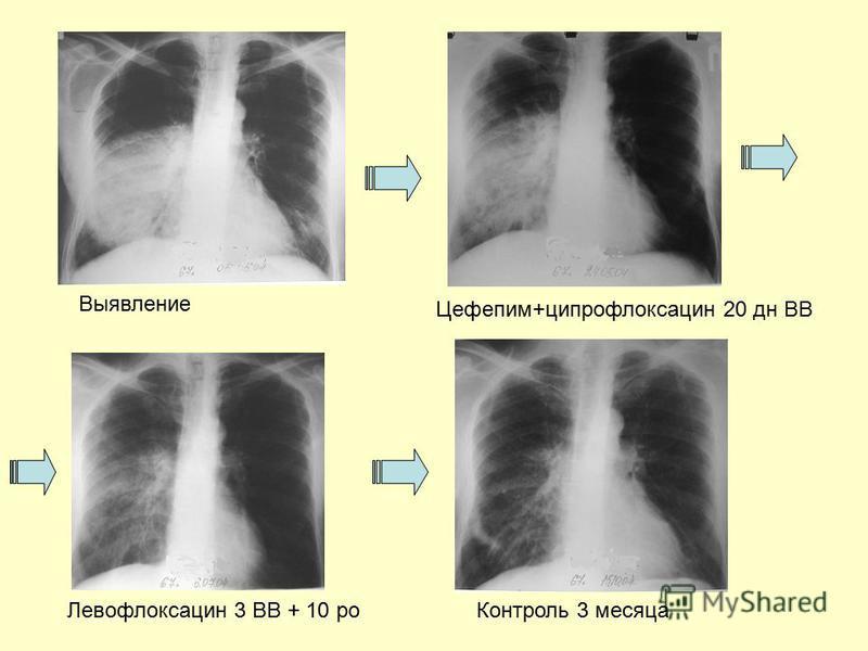 Выявление Цефепим+ципрофлоксацин 20 дн ВВ Левофлоксацин 3 ВВ + 10 po Контроль 3 месяца