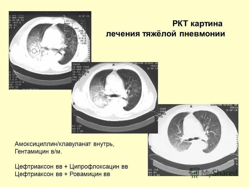 РКТ картина лечения тяжёлой пневмонии Амоксициллин/клавуланат внутрь, Гентамицин в/м. Цефтриаксон вв + Ципрофлоксацин вв Цефтриаксон вв + Ровамицин вв