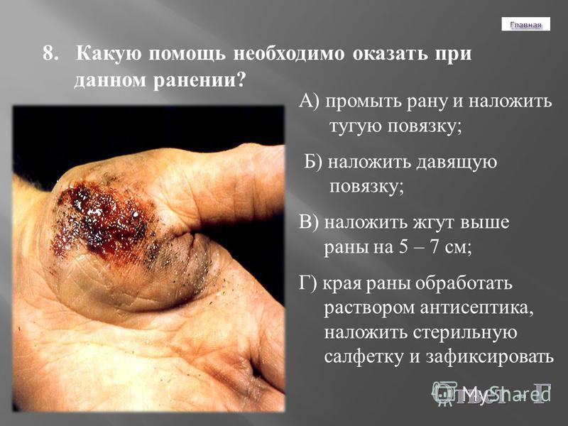 8. Какую помощь необходимо оказать при данном ранении ? А ) промыть рану и наложить тугую повязку ; Б ) наложить давящую повязку ; В ) наложить жгут выше раны на 5 – 7 см ; Г ) края раны обработать раствором антисептика, наложить стерильную салфетку