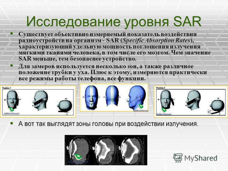 О вредном влиянии сотовых при использовании мобильного телефона подвергаются электромагнитному облучению головной мозг и находящиеся во внутреннем ухе сложные нервные образования, обеспечивающие нормальную деятельность слухового и вестибулярного анал