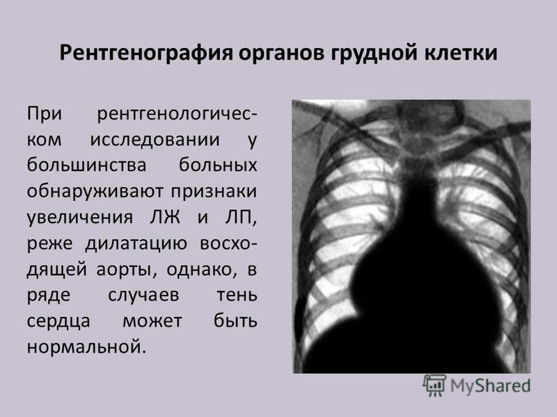 Рентгенография органов грудной клетки При рентгенологическом исследовании у большинства больных обнаруживают признаки увеличения ЛЖ и ЛП, реже дилатацию восходящей аорты, однако, в ряде случаев тень сердца может быть нормальной.