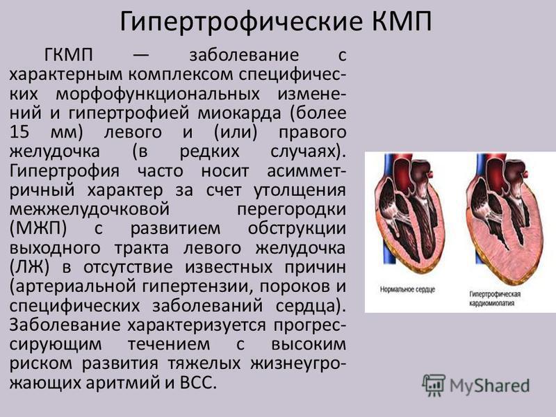 Гипертрофические КМП ГКМП заболевание с характерным комплексом специфических морфофункциональных изменений и гипертрофией миокарда (более 15 мм) левого и (или) правого желудочка (в редких случаях). Гипертрофия часто носит асимметричный характер за сч