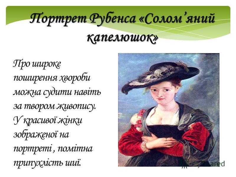 Про широке поширення хвороби можна судити навіть за твором живопису. У красивої жінки зображеної на портреті, помітна припухлість шиї. Портрет Рубенса «Соломяний капелюшок»