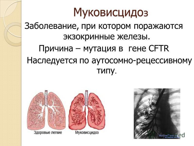 Муковисцидо з Заболевание, при котором поражаются экзокринные железы. Причина – мутация в гене CFTR Наследуется по аутосомно-рецессивному типу.