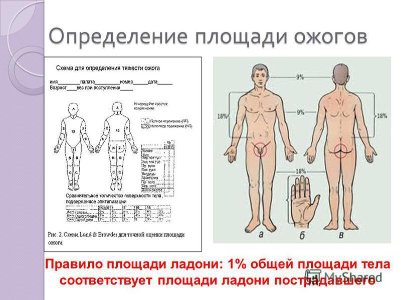 Определение площади ожогов Правило площади ладони: 1% общей площади тела соответствует площади ладони пострадавшего
