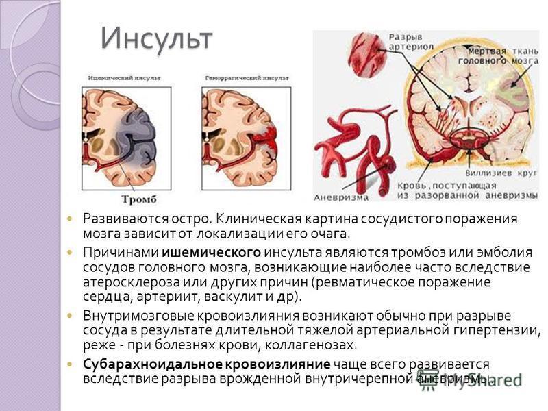 Viagra Induced Brain Anuerysm