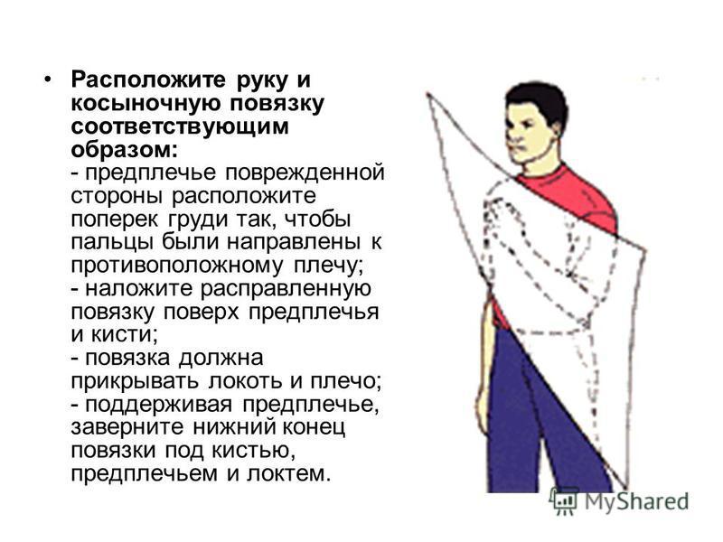 Расположите руку и косыночную повязку соответствующим образом: - предплечье поврежденной стороны расположите поперек груди так, чтобы пальцы были направлены к противоположному плечу; - наложите расправленную повязку поверх предплечья и кисти; - повяз