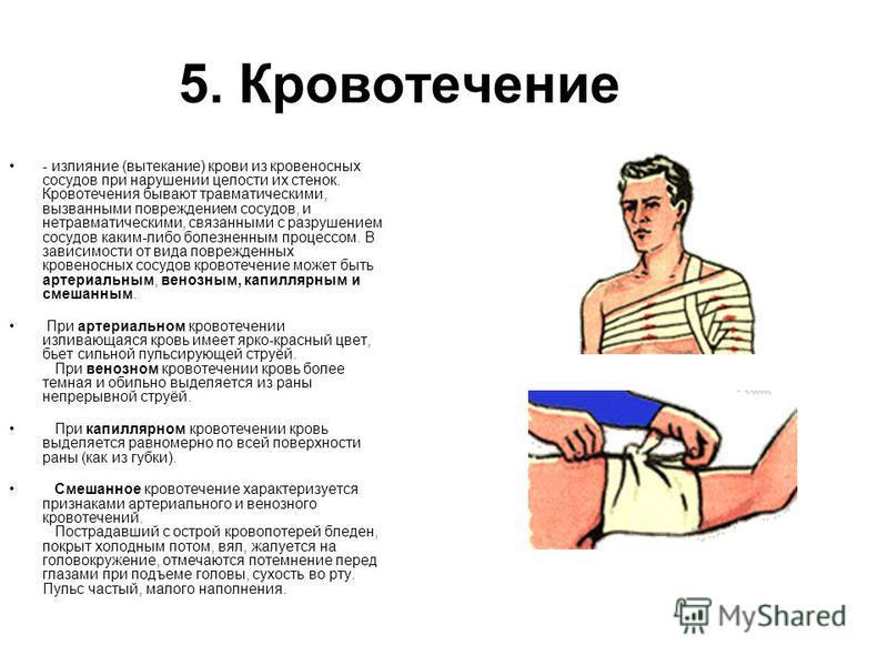 5. Кровотечение - излияние (вытекание) крови из кровеносных сосудов при нарушении целости их стенок. Кровотечения бывают травматическими, вызванными повреждением сосудов, и нетравматическими, связанными с разрушением сосудов каким-либо болезненным пр