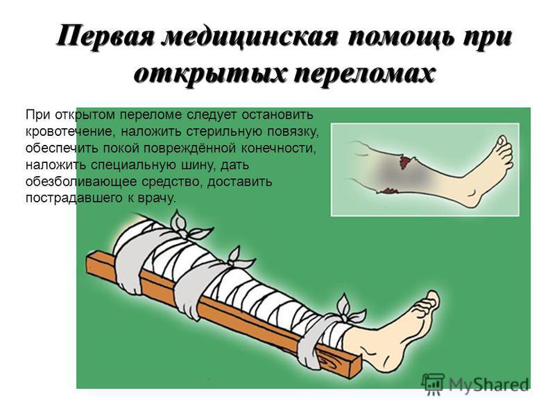 Первая медицинская помощь при закрытых переломах При закрытом переломе следует обеспечить покой повреждённой конечности, для чего накладывают специальную шину, затем дают обезболивающее средство, после чего обязательно доставляют пострадавшего к врач