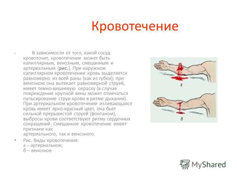 ПЕРВАЯ ПОМОЩЬ ПРИ РАНЕНИИ Раны – повреждения тканей, вызванные механическим воздействием, сопровождающиеся нарушением целости кожи или слизистых оболочек. Кровотечение – истечение крови из кровеносных сосудов при нарушении целости их стенки