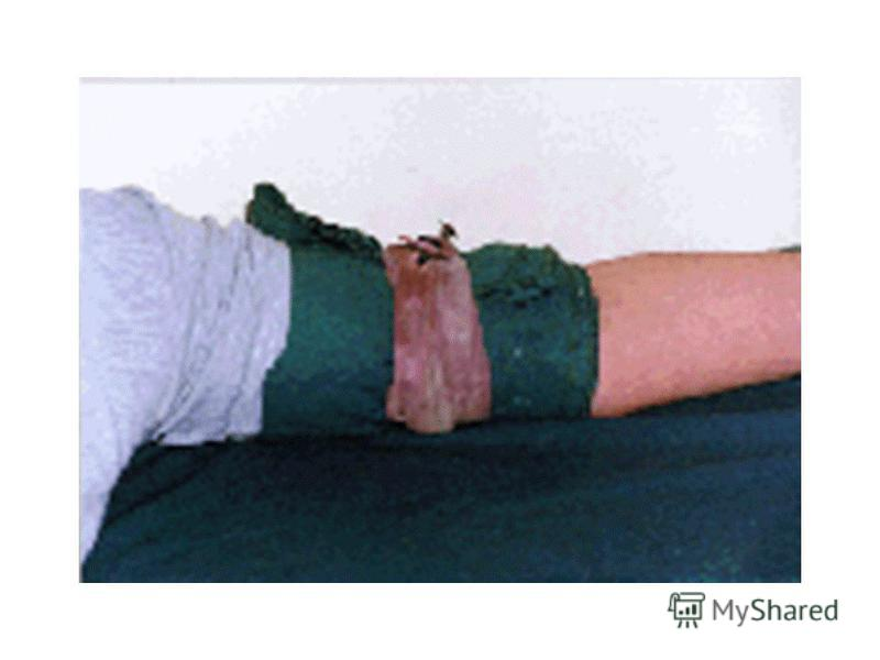 Наложение жгута После наложения жгута надежно прикрепить к нему записку с указанием времени, даты наложения, фамилии и должности спасателя. Жгут следует накладывать при сильном артериальном кровотечении выше места ранения на верхнюю треть плеча, на в
