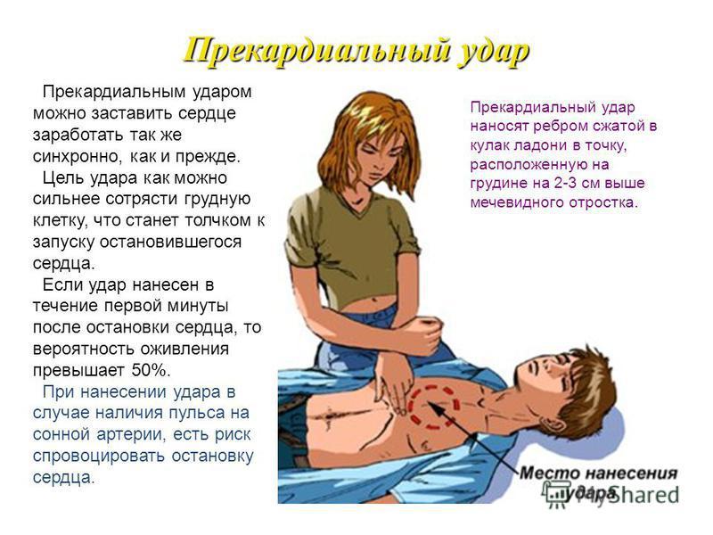 Клиническая смерть Признаки клинической смерти: потеря сознания, отсутствие дыхания, отсутствие реакции зрачков на свет, отсутствие пульса на сонной артерии. Самое главное при клинической смерти - добиться, чтобы появился пульс (восстановилось сердце