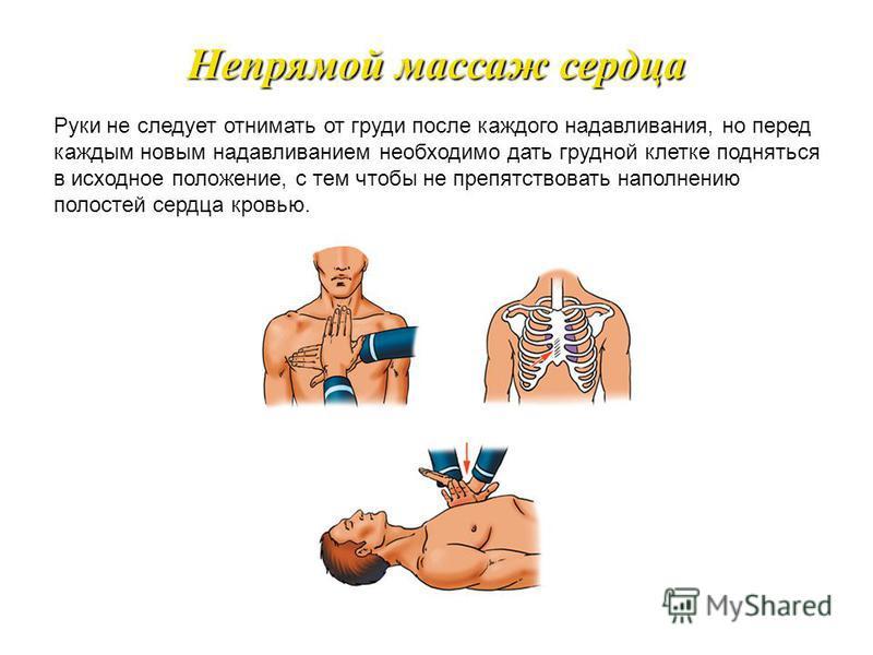 При выполнении непрямого массажа сердца следует положить ладонь одной руки в точку проекции сердца на грудине, а сверху на нее другую ладонь, пальцы держать приподнятыми, большие пальцы должны смотреть в разные стороны. Непрямой массаж сердца