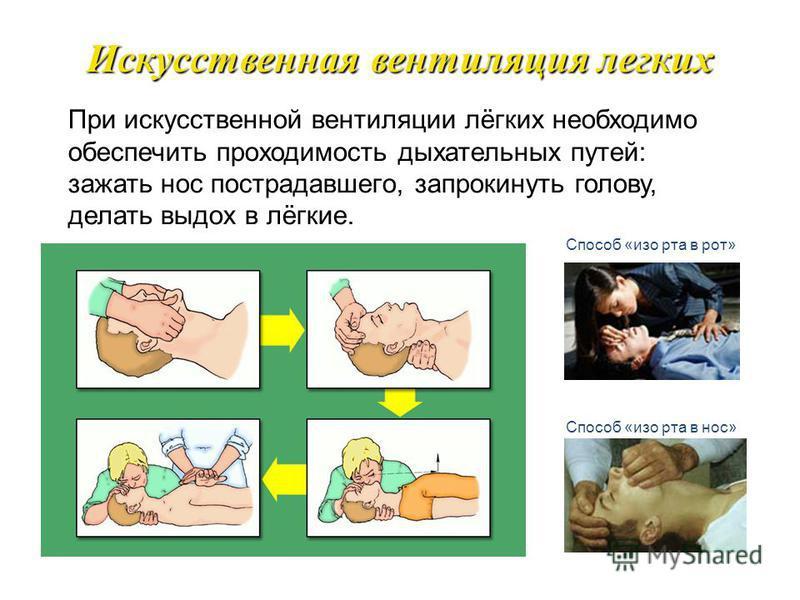 Обеспечение проходимости верхних дыхательных путей Придать больному соответствующее положение: уложить на твердую поверхность, на спину положив под лопатки валик из одежды. Голову максимально закинуть назад. Открыть рот и осмотреть ротовую полость. П