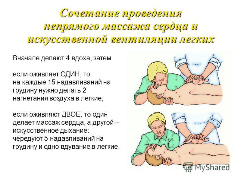 При искусственной вентиляции лёгких необходимо обеспечить проходимость дыхательных путей: зажать нос пострадавшего, запрокинуть голову, делать выдох в лёгкие. Искусственная вентиляция легких Способ «изо рта в рот» Способ «изо рта в нос»