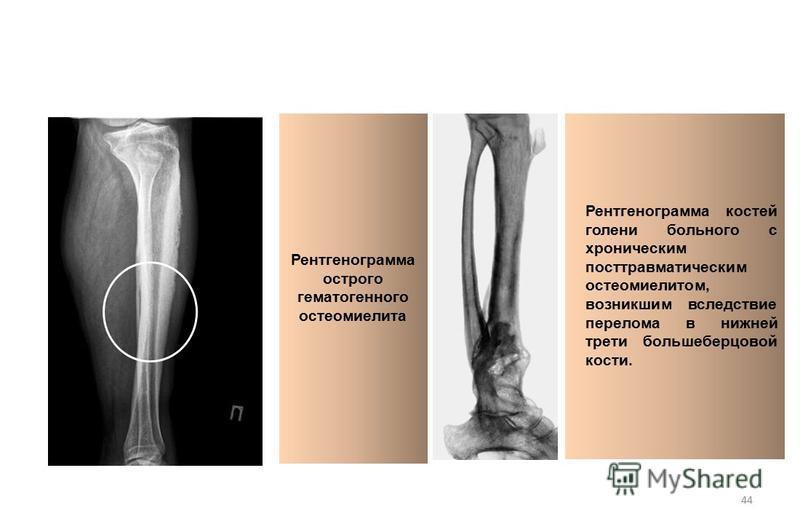 44 Рентгенограмма острого гематогенного остеомиелита Рентгенограмма костей голени больного с хроническим посттравматическим остеомиелитом, возникшим вследствие перелома в нижней трети большеберцовой кости.