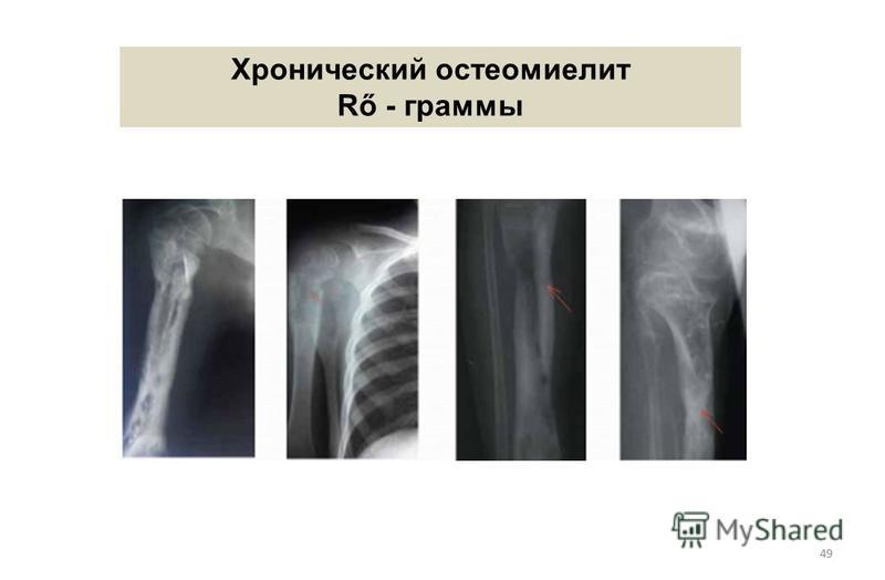 49 Хронический остеомиелит Rő - граммы