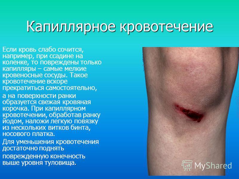 Капиллярное кровотечение Если кровь слабо сочится, например, при ссадине на коленке, то повреждены только капилляры – самые мелкие кровеносные сосуды. Такое кровотечение вскоре прекратиться самостоятельно, а на поверхности ранки образуется свежая кро