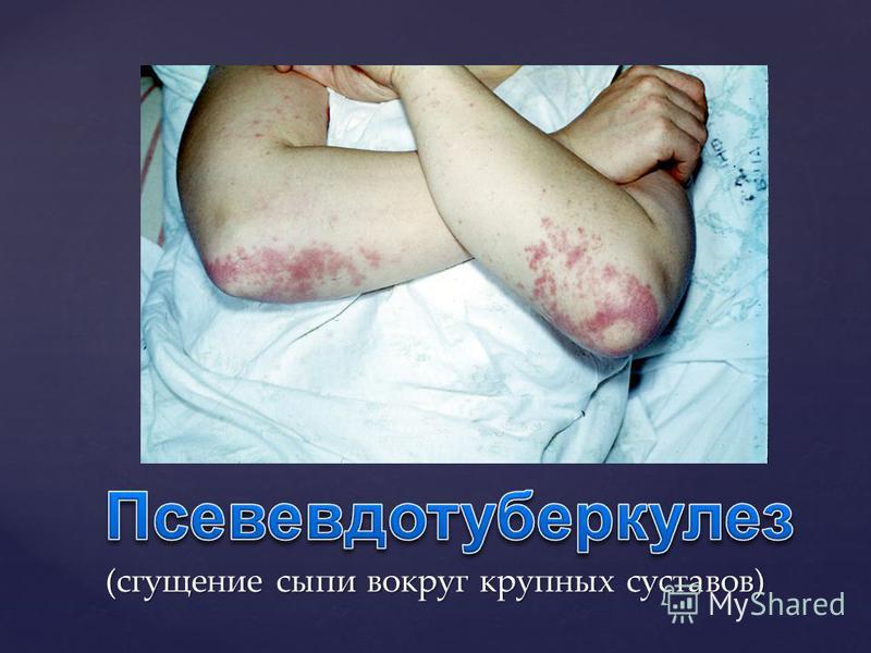 « Нет скарлатины без ангины»: катаральная, фолликулярная, некротическая ангина на 2- 4 д.б. (яркая гиперемия миндалин и слизистой с четкой границей между мягким и твёрдом нёбом) + лимфаденит (с первого дня болезненные, плотные, увеличенные подчелюстн