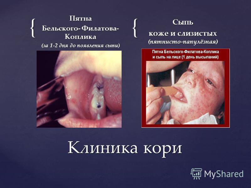 длительность 34 дня длительность 34 дня нарастающие симптомы интоксикации нарастающие симптомы интоксикации повышение температуры тела повышение температуры тела катаральные явления со стороны верхних дыхателиных путей; катаральные явления со сторон