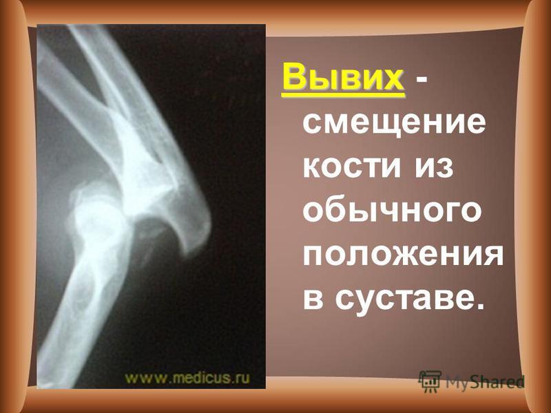 Вывих Вывих - смещение кости из обычного положения в суставе.