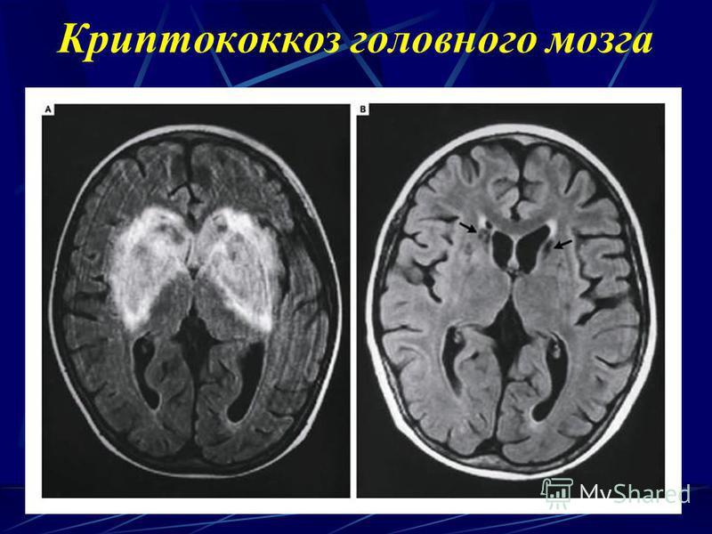 Криптококкоз головного мозга