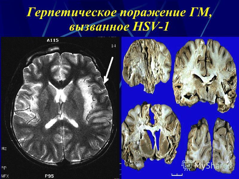 Герпетическое поражение ГМ, вызванное HSV-1