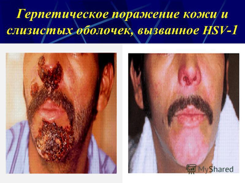 Герпетическое поражение кожи и слизистых оболочек, вызванное HSV -1