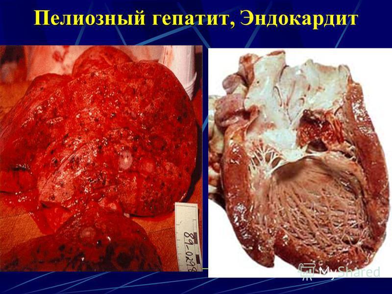 Пелиозный гепатит, Пелиозный гепатит, Эндокардит